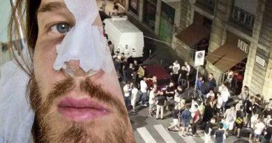 """gay picchiato botte milano via lecco 800x500 2 390x205 - Milano: gay massacrato di botte per aver fatto un complimento ad un ragazzo – molti giustificano la violenza """"Ha fatto bene!"""" (FOTO)"""
