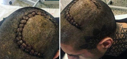 francesco-chiofalo-selvaggia-roma-tumore-operazione-cicatrice